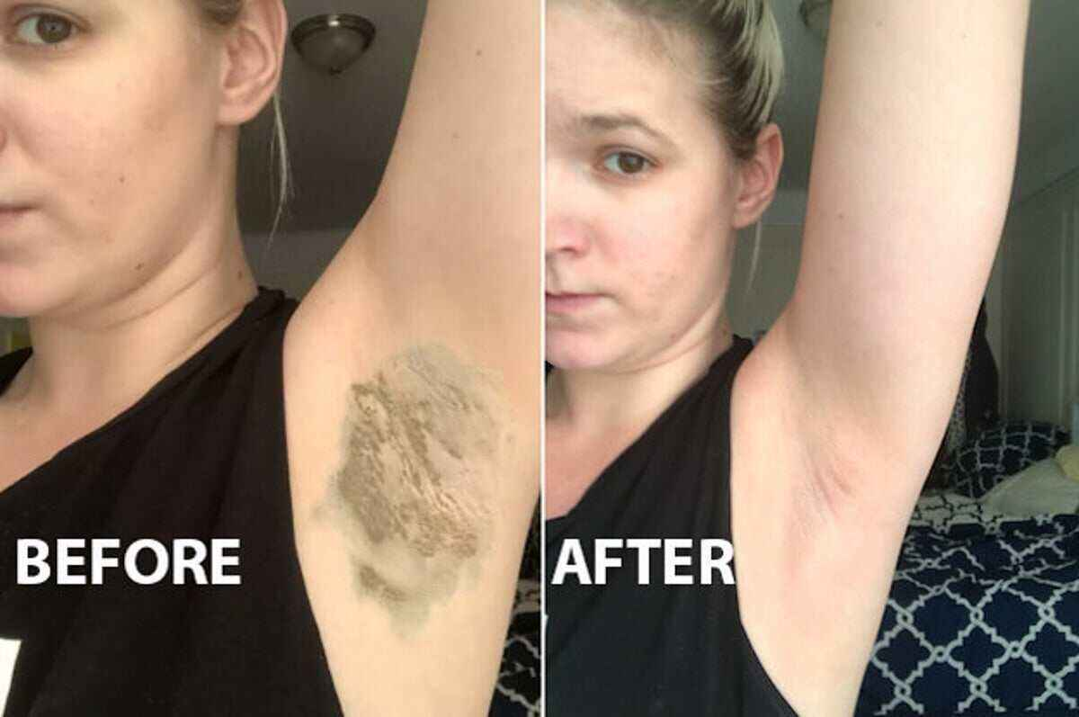 Armpit Detox Work