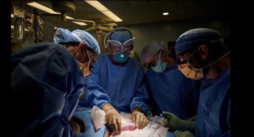 Human Kidney Transplantation
